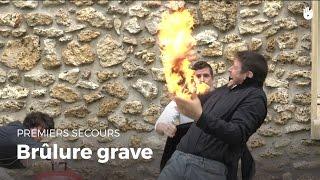 Premiers secours : Brûlure grave | Secourisme