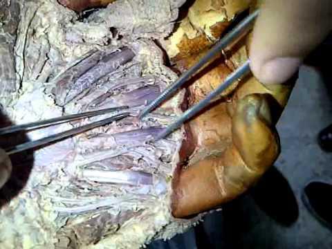 Musculos de la Mano (Lumbricales) - YouTube