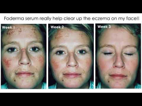 Foderma Serum Reviews For Eczema Scars Youtube