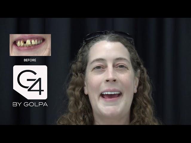 G4 By Golpa - Dallas - Patient: Astrid B