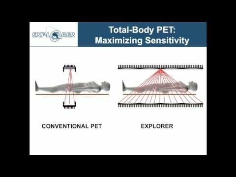 Simon Cherry: EXPLORER -- Changing the Molecular Imaging Paradigm with Total-Body PET/CT