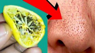 सर्फ 5 मिनट में ब्लैकहेड्स और वाइटहेड्स खत्म करें  blackheads & whiteheads remove fast in 5 minutes