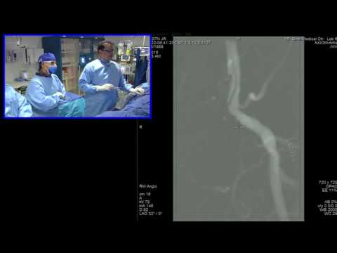 June 22, 2016 Peripheral Interventions