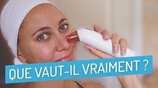 Aspirateur Points Noirs Lugira : Que vaut le Skin Cleaner ? (Test & Avis) 2019