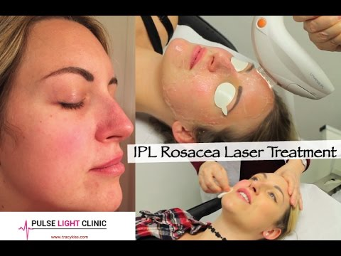 Rosacea Laser Treatment At The Pulse Light Clinic With Tracy Kiss
