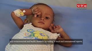 انتهاكات الحوثيين في الحديدة.. طوفان الدم الذي لايتوقف | تقرير المرصد الحقوقي