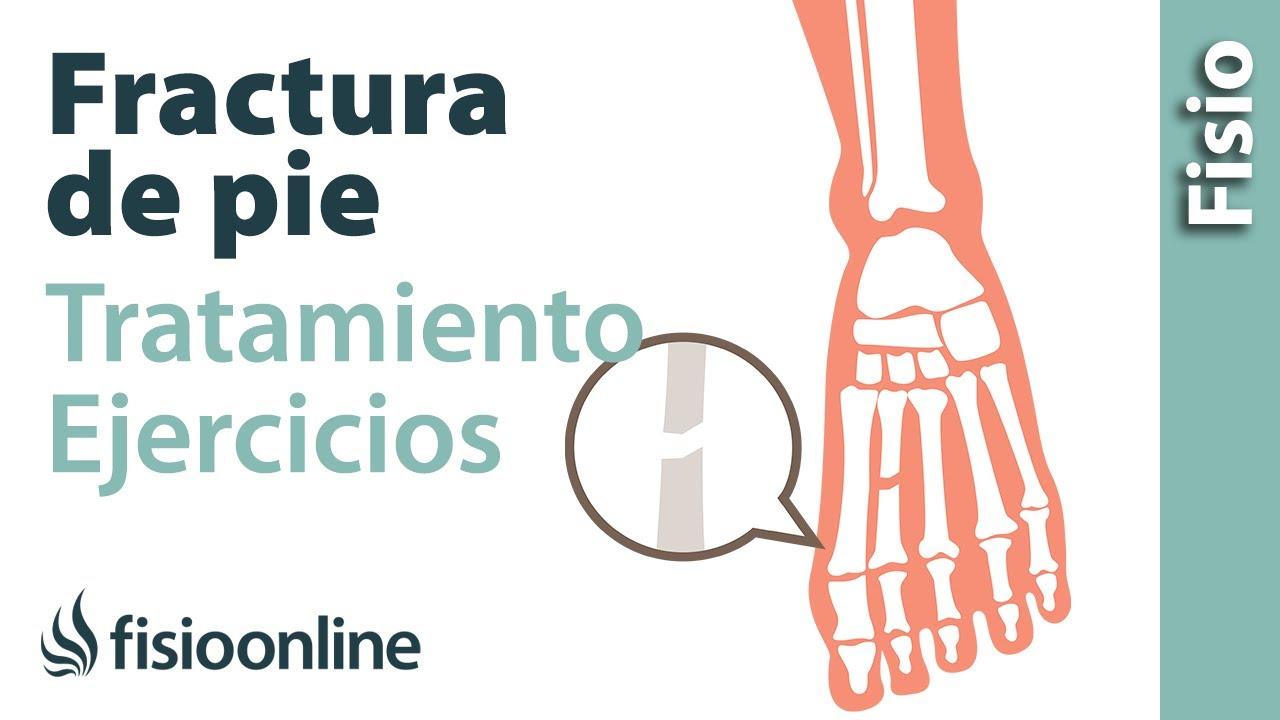 Rehabilitación de fracturas del pie con ejercicios, automasajes y ...