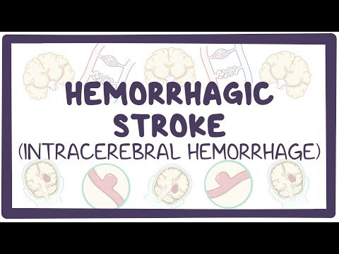 Hemorrhagic stroke: intracerebral hemorrhage - causes, symptoms, diagnosis, treatment, pathology
