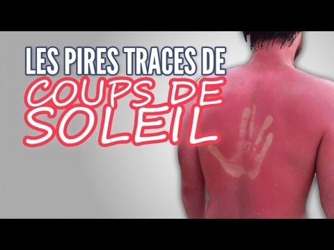 Top 20 des pires traces de coups de soleil topito tv youtube - Coup de soleil mobilier ...