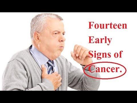 Symptom Of Cancerous Pancrease Interstitial