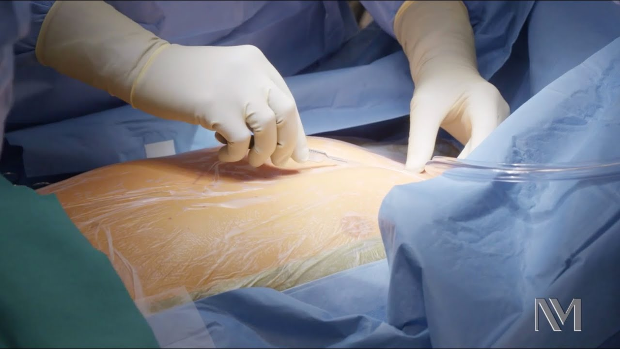 Download Open Heart Surgery | Inside the OR