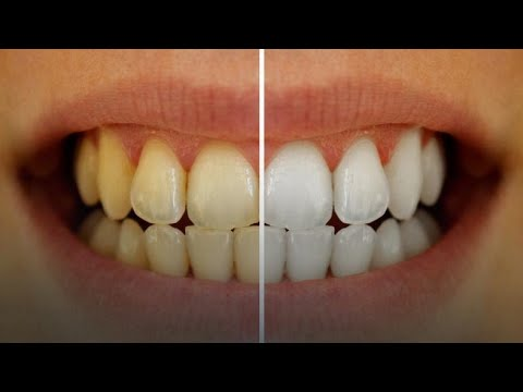 3-hacks-for-the-yellow-to-whiten-teeth-naturally||teeth-clean-tricks||
