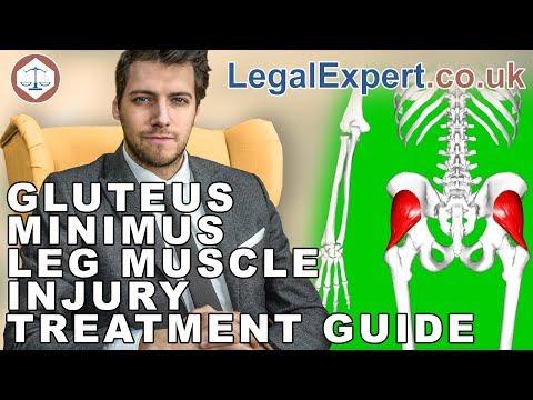 Gluteus Minimus Leg Muscle Injury Treatment Guide ( 2019 ) UK
