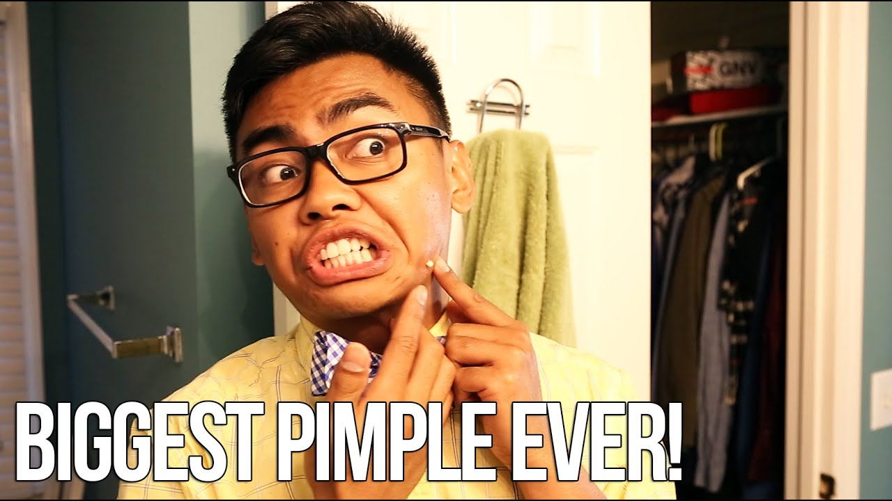 Download THE BIGGEST PIMPLE EVER - #UpYourGame