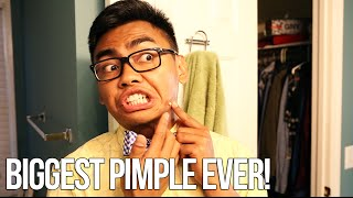 THE BIGGEST PIMPLE EVER - #UpYourGame