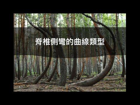 閻曉華說脊椎側彎第四章 脊椎側彎的曲線類型