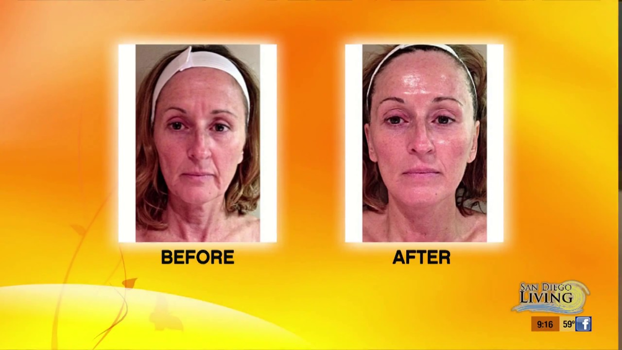 Are micro current facial sculpting