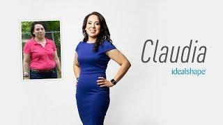Claudia Trevino - IdealShape Weight Loss Transformation