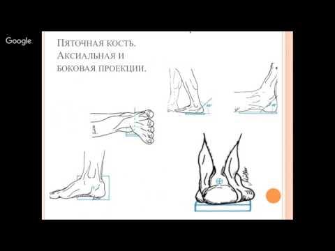 Перелом костей стопы, пяточной и плюсневой. Причины