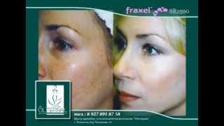 Красота без проблем - Fraxel(Сообщаем Вам, что найдена альтернатива пластической хирургии! Fraxel SR 1500 - это лазерная процедура, которая..., 2012-11-27T14:42:08.000Z)