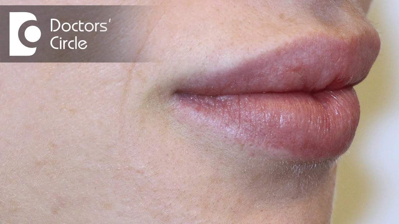 Causes of white spots on lips?-Dr  Nischal K