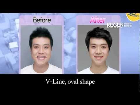 韩国男星整容前后对比