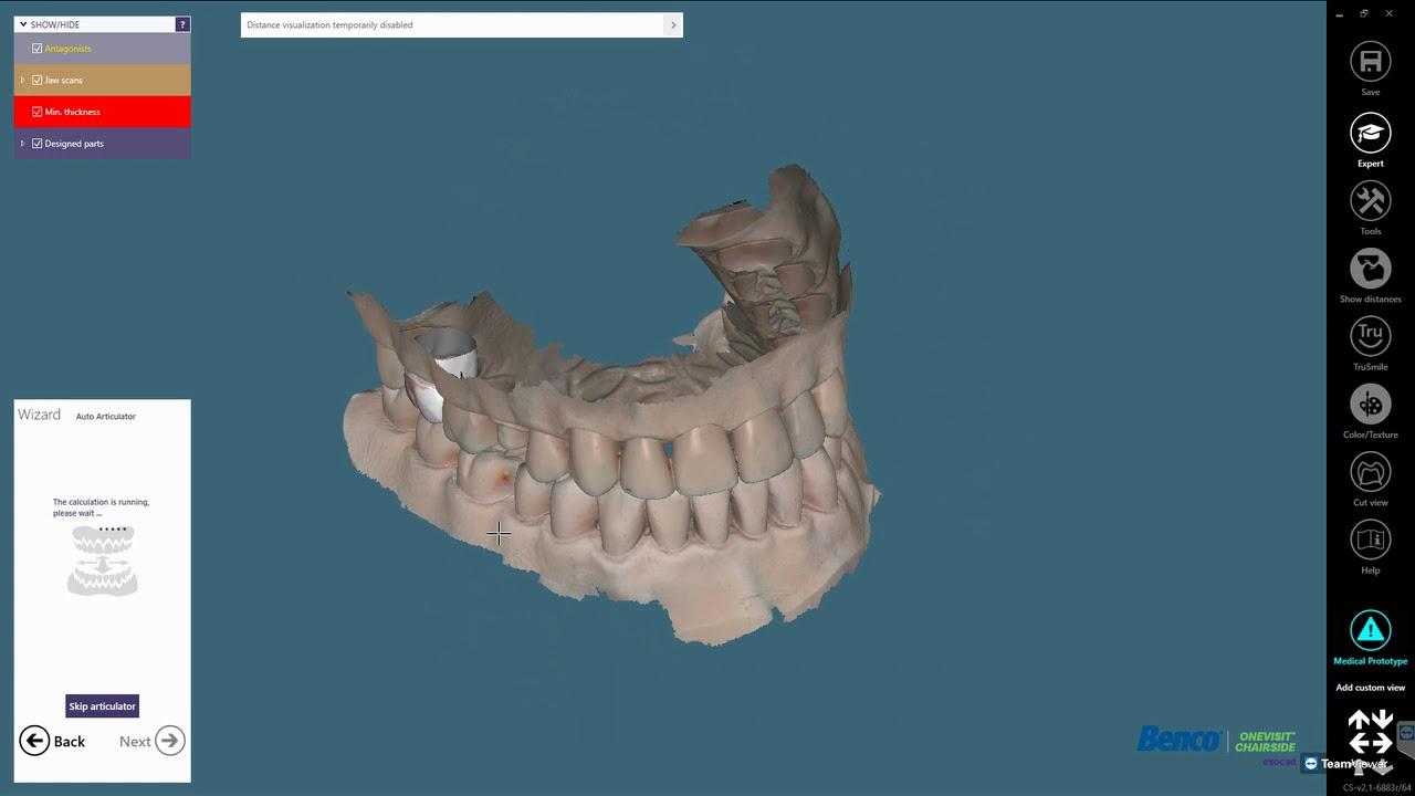 CAD/CAM Dental Software - Start Designing | Benco Dental