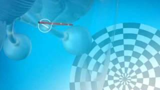 Multiple Sclerosis animation