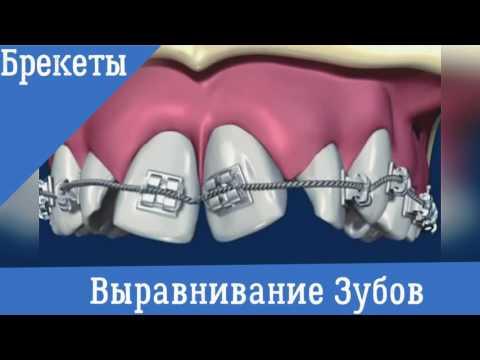 Ортодонтия. Брекеты.  Выравнивание зубов
