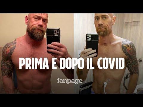 """Prima e dopo il Coronavirus, """"ecco come ha ridotto il mio corpo in 30 giorni di intubazione"""""""