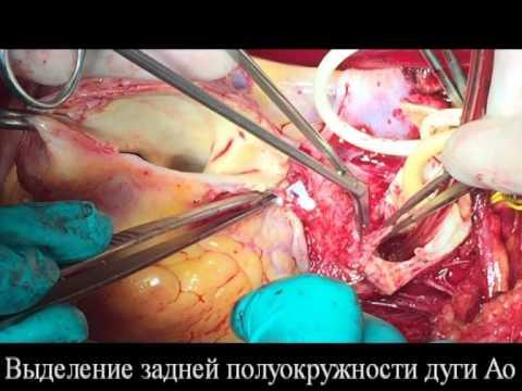 Симптомы и лечение расслоения аорты