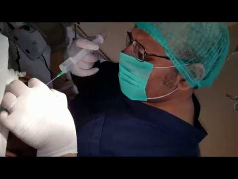 FUE Hair transplant, Tumescent Anesthesia, Dr. M. Khawar Nazir