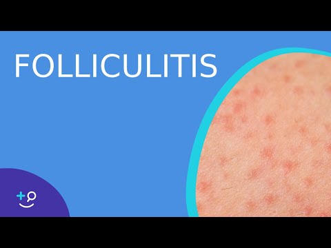 Folliculitis - American Osteopathic College of Dermatology (AOCD)