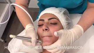 Microdermabrasion -Skincare LASER Clinic Point Cook Melbourne