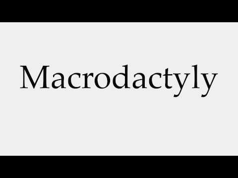 How to Pronounce Macrodactyly