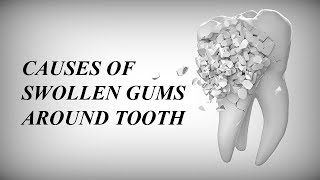 SWOLLEN GUMS AROUND TEETH: THE CAUSES