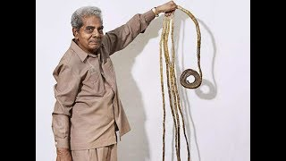 82-year-old Shridhar Chillal with longest nails finally trims them after 66 years