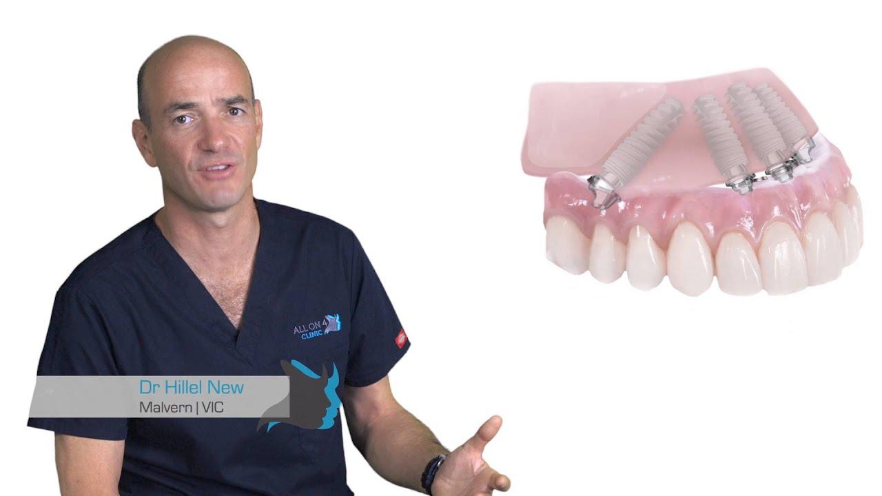 All-On-4 Clinic New Zealand - Dental Implants