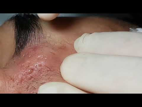 Severe Cystic Acne - Victor: Electrolysis Between Eyebrows