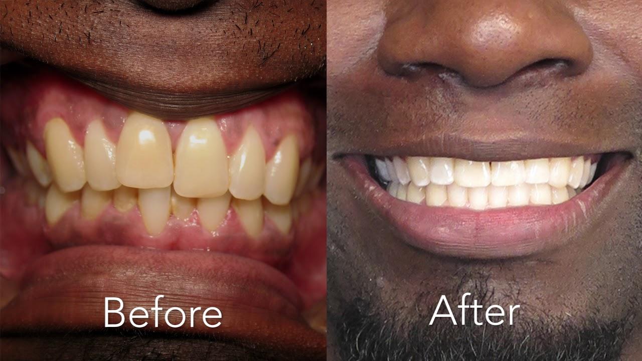 Modern Dental Care   Dental Services in Las Vegas