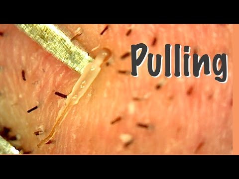 Pulling Juicy Hair Roots