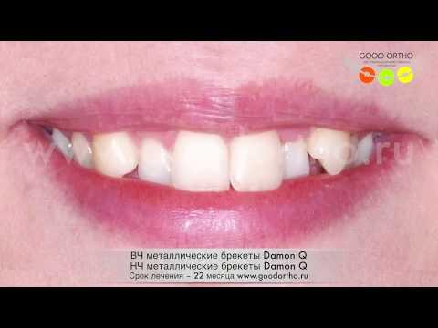Опустить клык в зубной ряд на внутренних лингвальных брекетах
