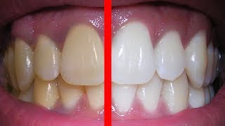 GET WHITE TEETH SUBLIMINAL EXTREMELY POWERFUL AND VERY FAST ...