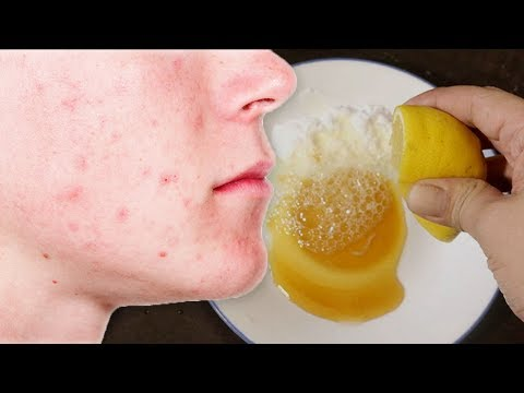 How to Get Rid of Acne, Stains and Pimple Marks Naturally