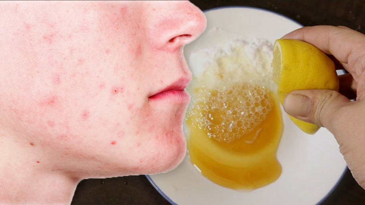 Foods to eat to get rid of pimples are