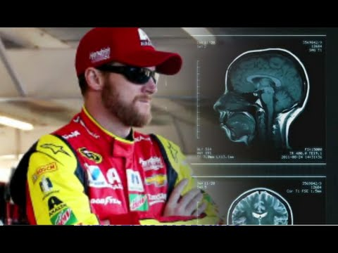 Dale Earnhardt, Jr., to Donate Brain to Concussion Research