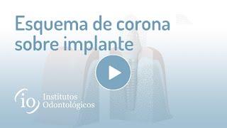 Gambar cover Esquema de corona sobre implante