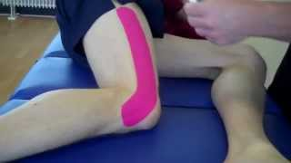 How to treat IT Band Friction Syndrome (Runners Knee) with Kinesiology Tape
