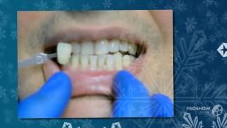 отбеливание зубов цены   - Как отбелить зубы(http://rabotadoma.luzani.ru/karandash/ Эффективная система отбеливания зубов Если у вас большое почернение зубов употр..., 2014-09-28T05:56:10.000Z)