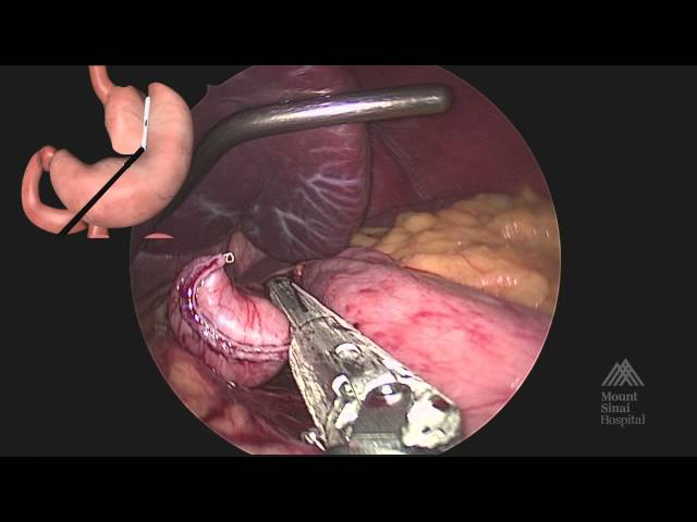 THE MOUNT SINAI SURGICAL FILM ATLAS Laparoscopic Roux en Y Gastric Bypass